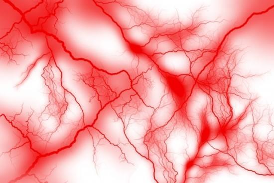 脳_血管の画像